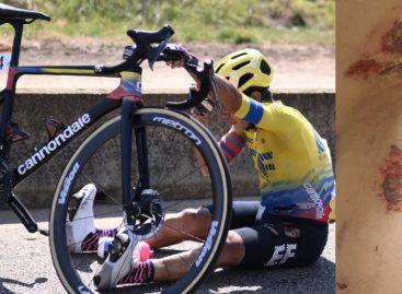 Las fuertes heridas que le dejó el Tour de Francia al antioqueño Sergio Andrés Higuita