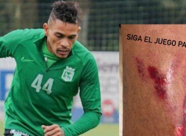 Jonatan Álvez mostró herida en el pie tras fuerte entrada de un jugador de La Equidad